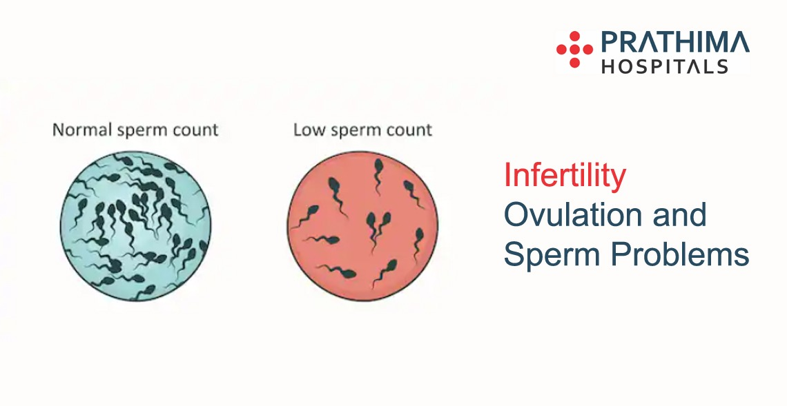 infertility ovulation