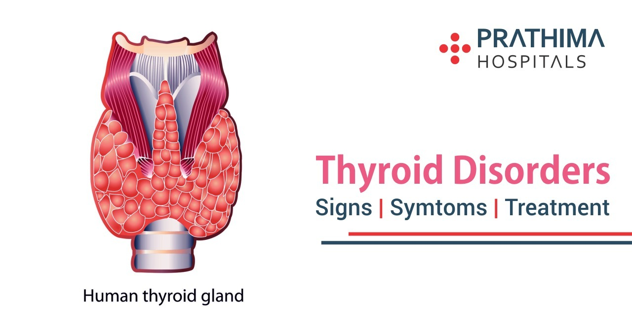 thyroid-disorders