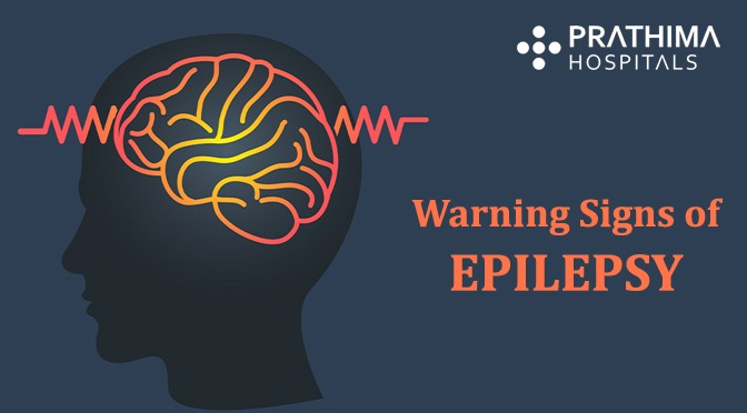 warning signs of epilepsy
