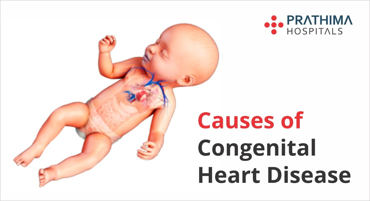 causes of congenital heart disease