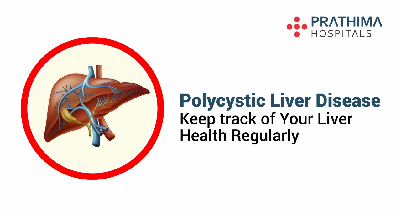 Polycystic Liver Disease- Aim for a healthy liver