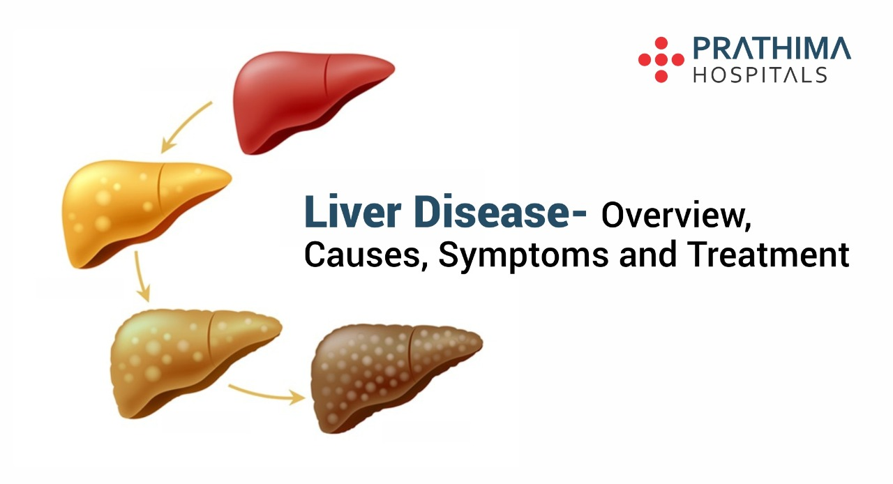 liver disease- symptoms, causes and treatment