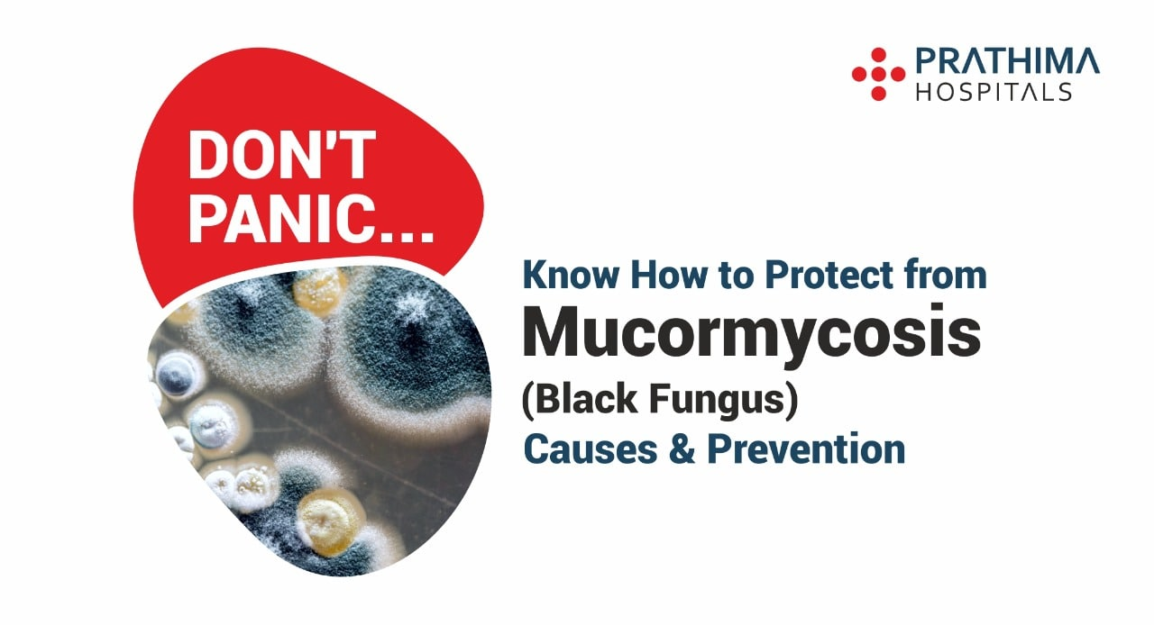mucormycosis- causes, symptoms, treatment