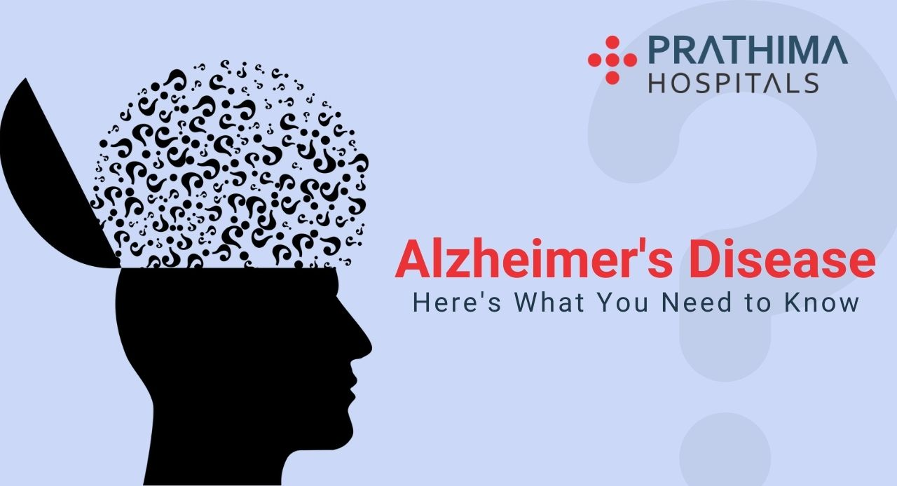 Alzheimer's Disease- Things you need to know